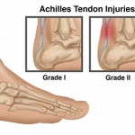 grades-of-achilles-tendon-rupture